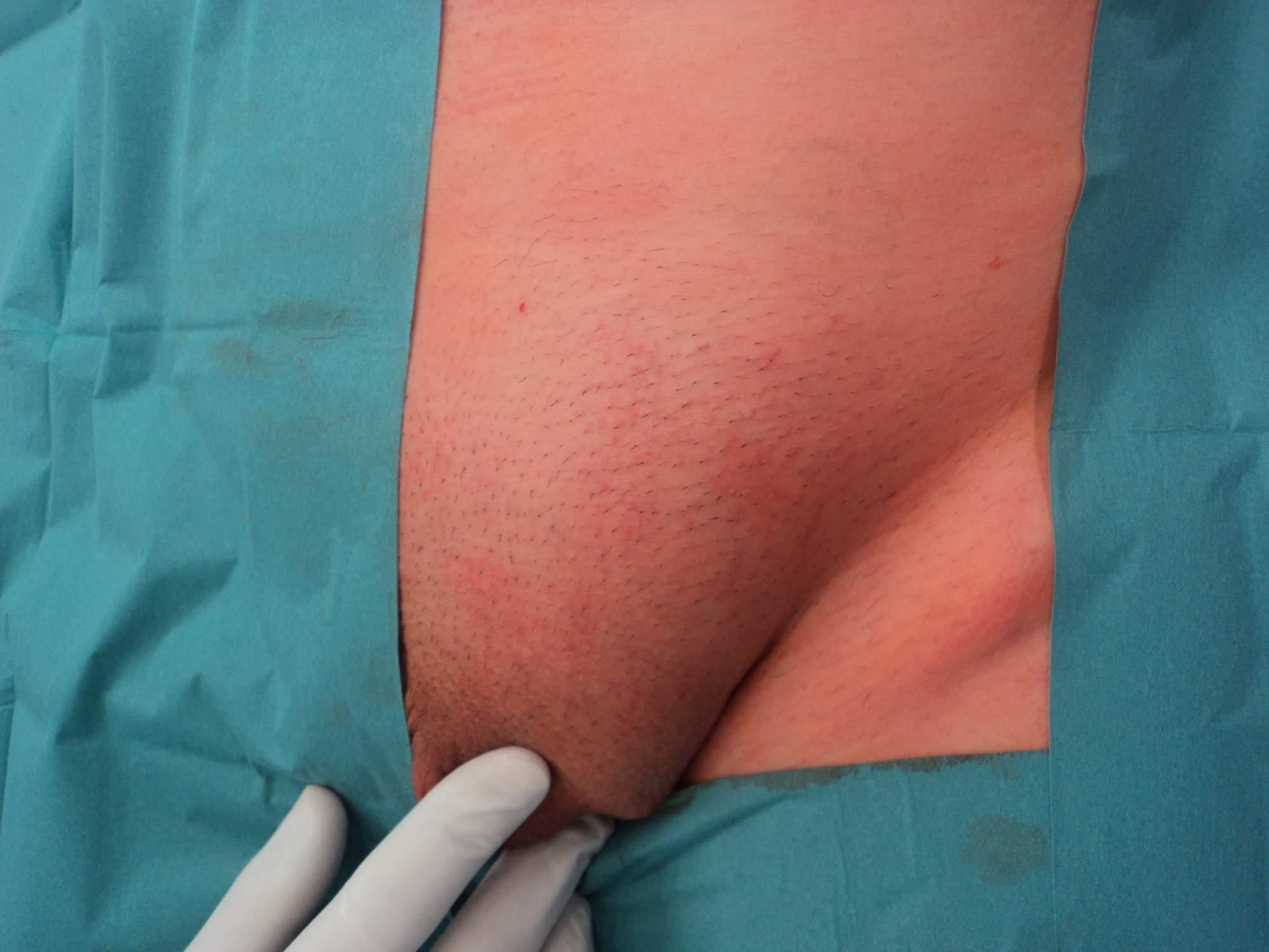 Klasická operace tříselné kýly